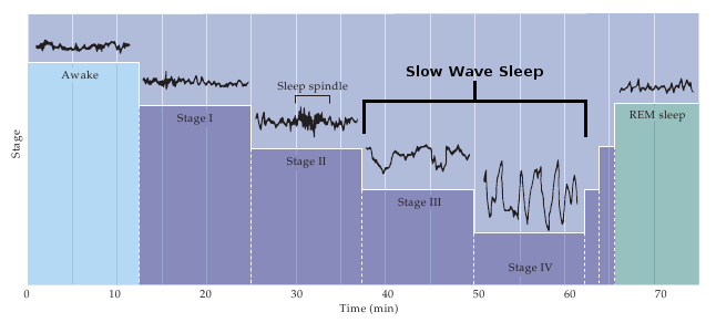 How Poor Sleep Quality May Contribute to Alzheimer's | Braintest com