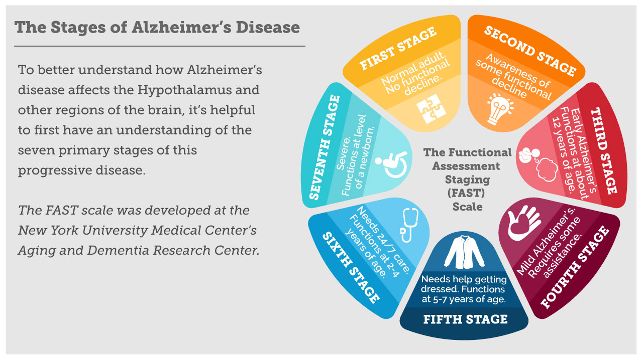 alzheimer's disease stages