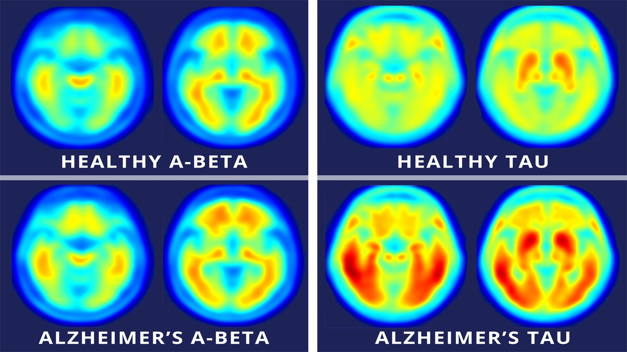 How Accurate Are PET Scans for Alzheimers Diagnosis